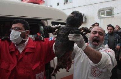 Еще одна жертва бомбардировки белым фосфором в Палестине.